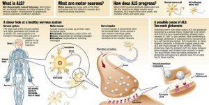 Medyczna marihuana dla pacjentów z ALS, Dutch Seeds