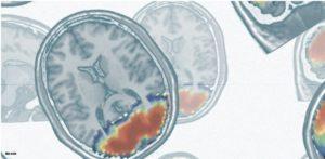 Struktura mózgu pozostaje przez cannabis nienaruszona, Dutch Seeds
